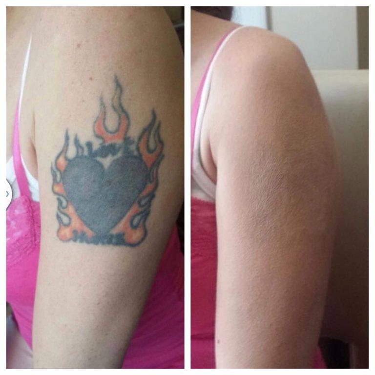 Make up cover tattoos in Las Vegas