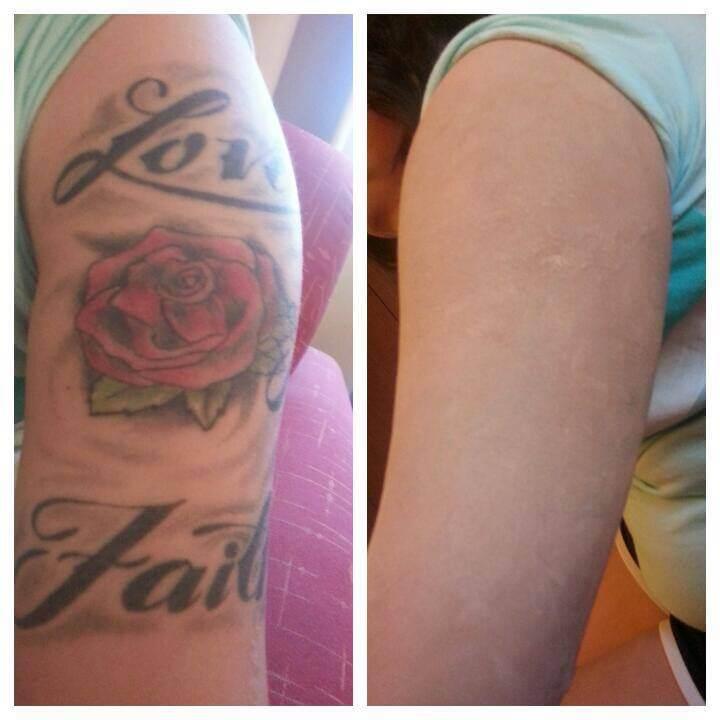 Tattoo cover up Las Vegas